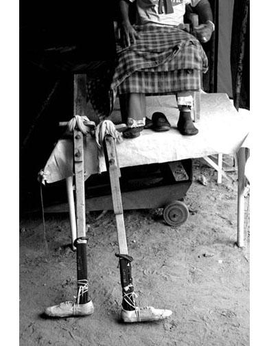 Legs by Bikramjit Bose C'mon Charlie C'mon Charlie